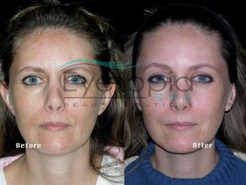 gallery-before-after-facials-01