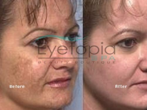 gallery-before-after-facials-02
