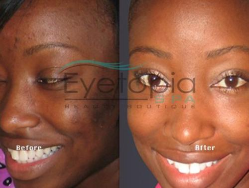 gallery-before-after-facials-03